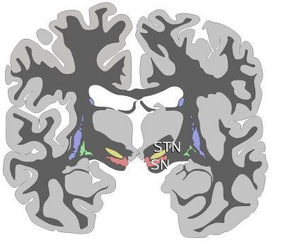 Coronal slices of human brain showing the basal ganglia, globus pallidus: external segment (GPe), subthalamic nucleus (STN), globus pallidus: internal segment (GPi), and substantia  nigra  (SN, red).