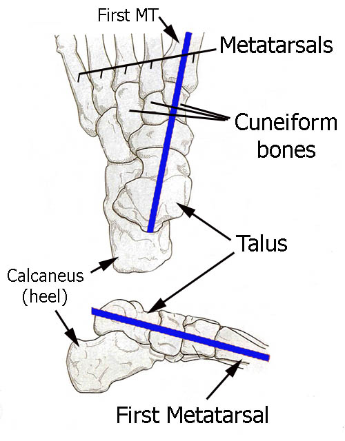 Ankle Foot 1st talus misalignment